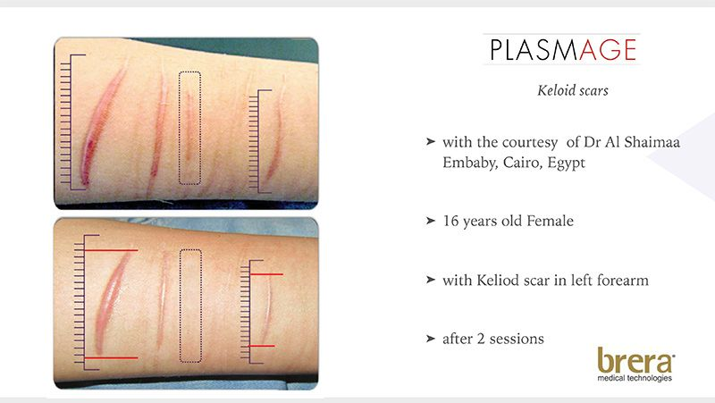 Plasmage - The new tool in dermatology and medical aesthetics